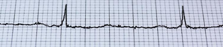 EKG Linie Verlauf